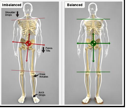 Leg length discrepancies leg length inequality and back hip and ...