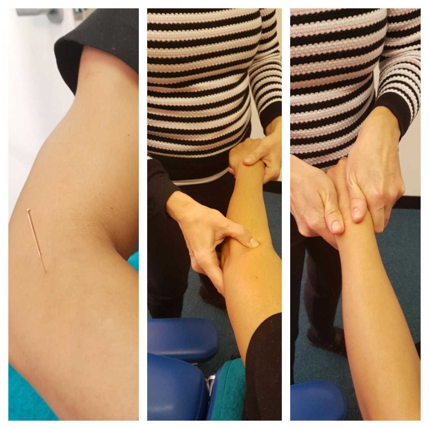 Forarm And Elbow Nerve Pain Down Arm Or Hand Perth